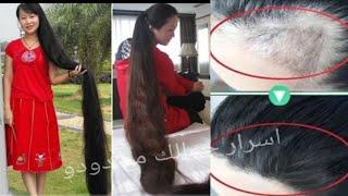 Download سر الهنديات، لتطويل الشعر بسرعة الصاروخ وعلاج الصلع نهائيا من الاسبوع الاول🌿شعر طويل وكثيف