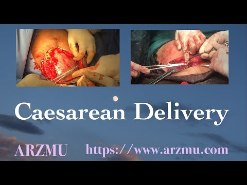 C-section (Cesarean Section) | Caesarean Delivery | All Steps In A Cesarean Delivery
