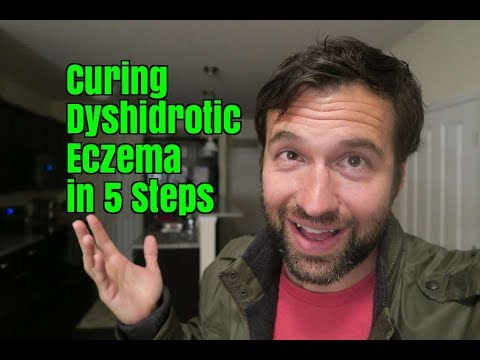 Curing Dyshidrotic Eczema in 5 Steps, The Way I Did 5 Years Ago