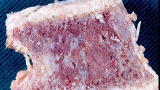Paget's Disease Of Bone - Pathology Mini Tutorial