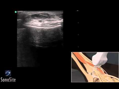 Guide 3D: Esame ecografico del tendine estensore della caviglia - Sistema a ultrasuoni SonoSite
