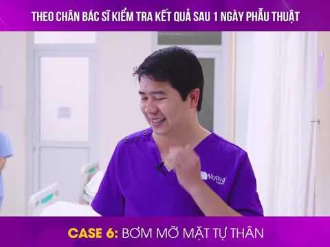 Theo Chân Bác Sĩ Hoàng Tuấn đi Thăm Kết Quả Sau 1 Ngày Phẫu Thuật Của 9 Khách Hàng