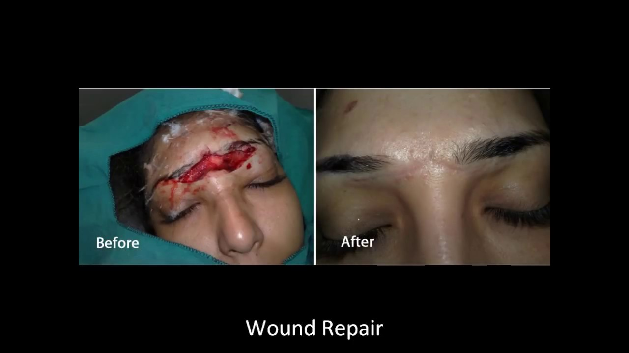 Scar Revision Removal Dr B Halima Technique Hd Youtube