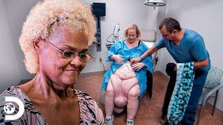 Mudanças incríveis após remoção de pele   Quilos mortais: Como eles estão agora?   Discovery Brasil