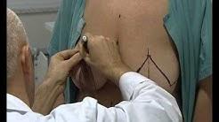 Rintojen pienennysleikkaus