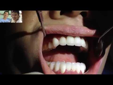 Mài răng-Làm chụp răng sứ thẩm mỹ