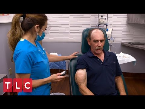Chuck Has A Popeye-Shaped Bump On His Arm | Dr. Pimple Popper