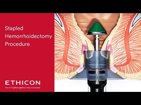 PPH Procedure Animation | Stapled Hemorrhoid Surgery
