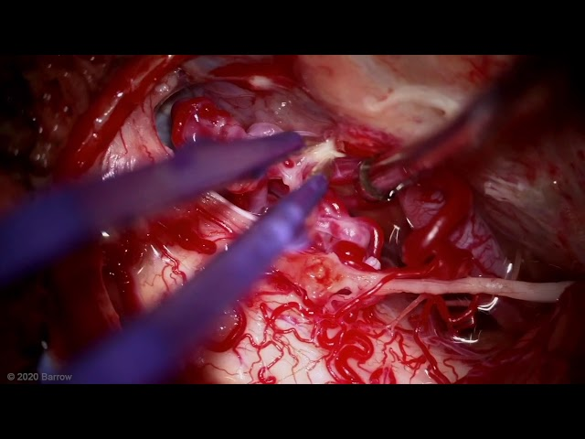 Microsurgical resection of an anterior medullary arteriovenous malformation