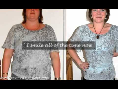Balmoral Weight Loss - Lose Weight Balmoral Diet Tips.