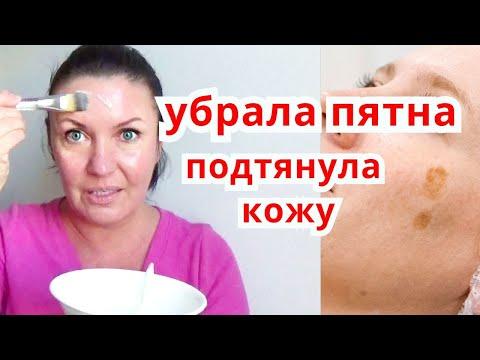 Как в домашних условиях отбелить лицо от пигментных пятен
