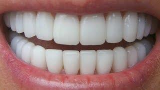 कभी सोचा नहीं था 3 मिनट में दांत इससे इतने ज्यादा सफ़ेद हो जायेंगे//आप भी जान लो//Amazing Nuskha