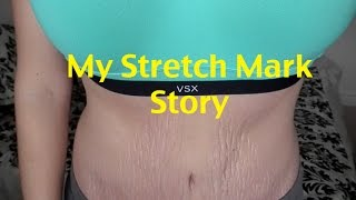 My Stretch Mark Story {Love Your Lines}