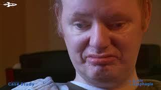 Dysphagia Case Study - Peter L