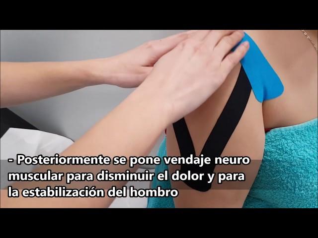 Clinicas Francisco Hinojosa - Luxación del hombro