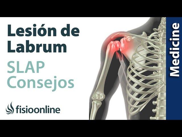 desprendimiento de musculo del hueso