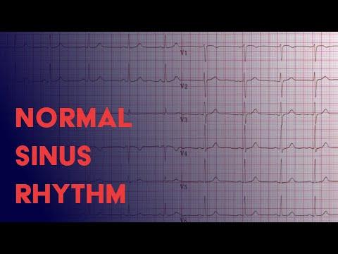 Normal Sinus Rhythm -  EKG (ECG) Interpretation