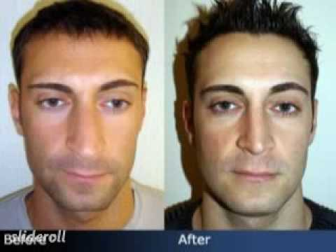 Nose Job Before Amp After Male Rhinoplasty In Nyc Youtube