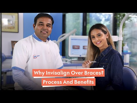 All You Need To Know About Invisalign's Advanced Technology To Transform Your Smile