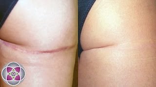 Laser Scar Removal - How to Remove Scars