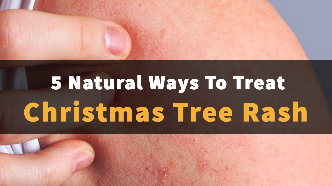 Natural Ways To Treat Christmas Tree Rash Youtube