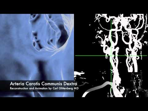 MRI Angiography 3D reconstruction and Flythrough of Cerebral Aneurysm