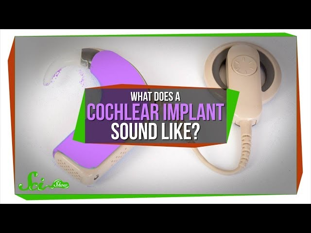 What Does A Cochlear Implant Sound Like?