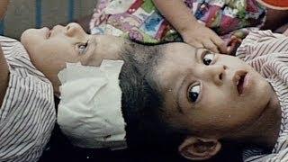 Separate Lives (Full Documentary) © 1996 Kensington Communications