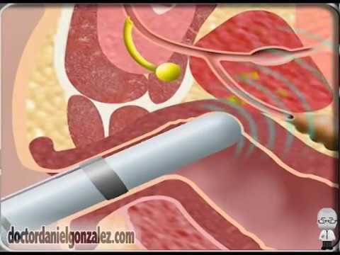 Como se hace una operacion de prostata