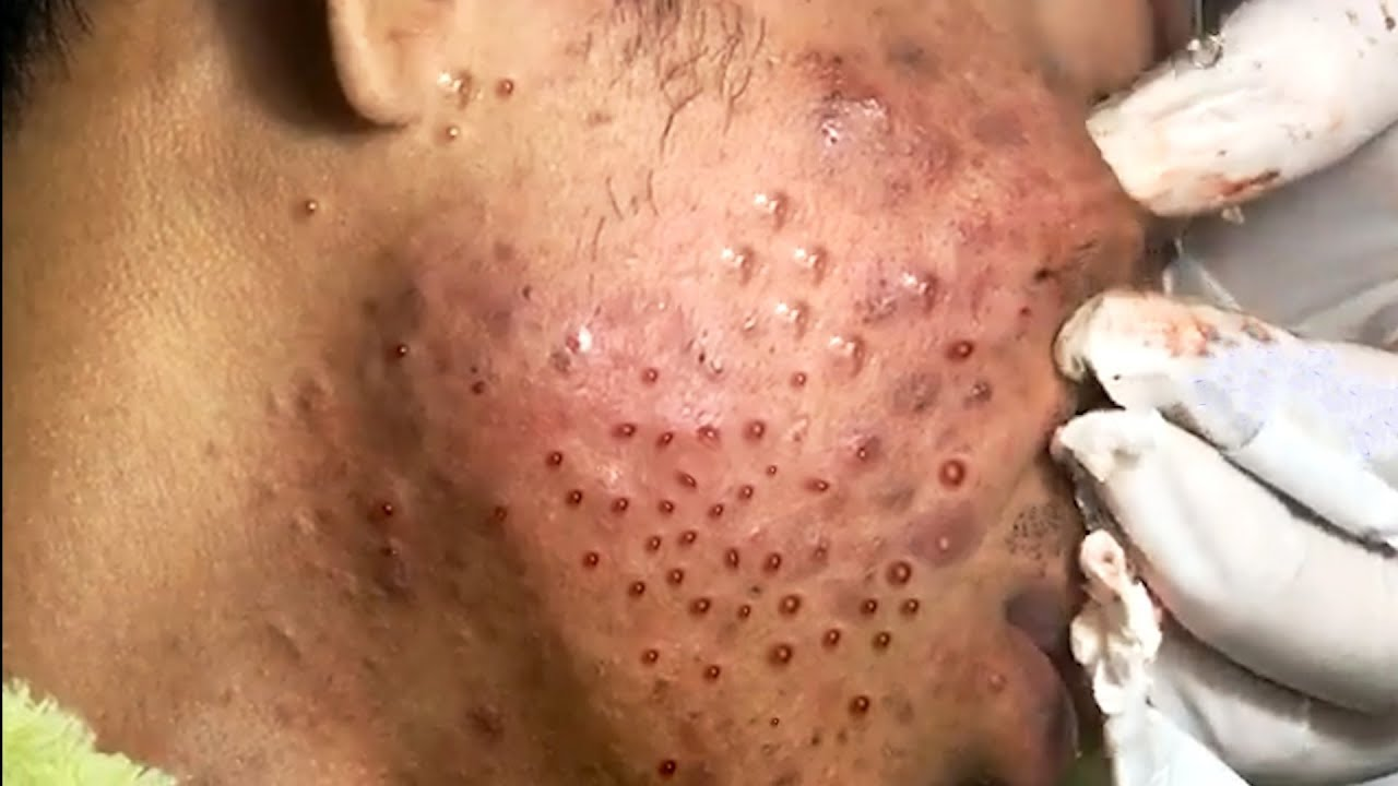 Whiteheads Acne Pimple Popping