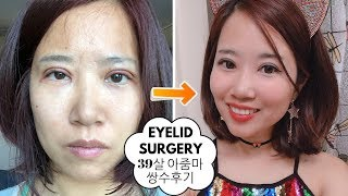 I did double eyelid surgery in Korea. (incl. 30 days recovery process pics & vids)
