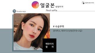 [얼굴본 REAL SELFIE]광대축소, 매부리코성형(…