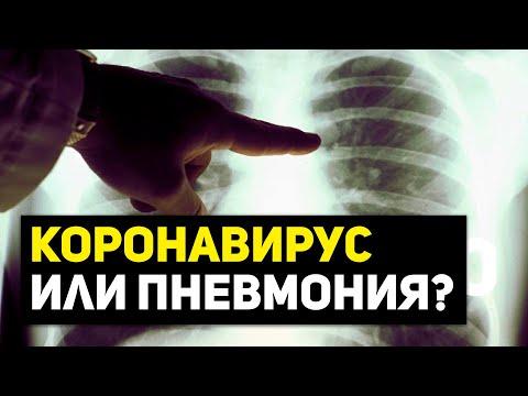 Коронавирус или пневмония? Почему в Дагестане всплеск больных?