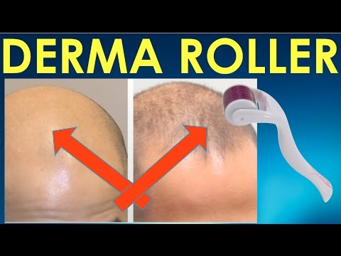Dermaroller Before and After – Dermaroller before and after Results for Hair Growth