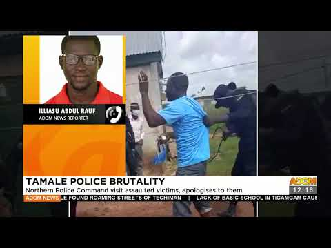 Tamale Police Brutality: Northern Police Command visit assaulted victims -Premotobre Kasee (22-9-21)