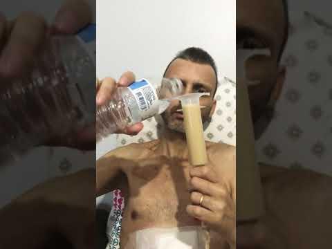 Feeding Tube - Help Support Fabio Cabral