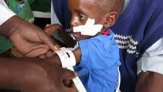 Malnutrition - Measuring MUAC
