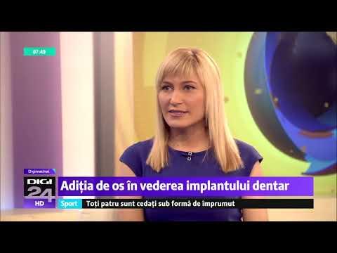 Aditia de os in vederea implantului dentar