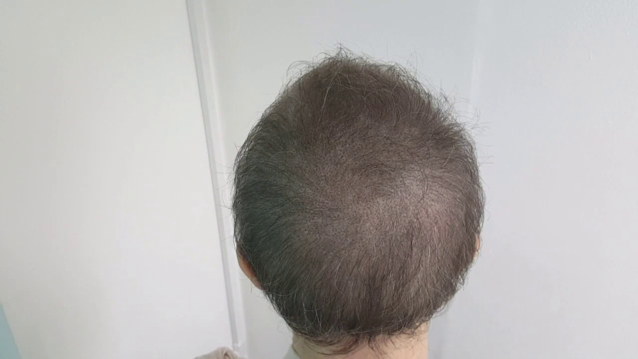 Female Post Chemo SMP Thin Hair Scalp density Micropigmentation by El Truchan @ Perfect Definition