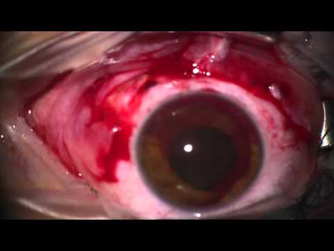 scleral rupture from pencil attack, repair by resident, accommodates #1