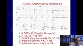 ELECTROCARDIOGRAFIA CURSO TALLER 7. HIPERTROFIAS VENTRICULARES.wmv