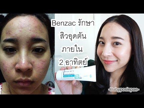 รักษาสิวอุดตันด้วย Benzac ภายใน 2 อาทิตย์ ไม่เจ็บตัว ไม่ฉีดหรือกินยา l Babyposiepae