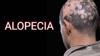 Mengelola Alopecia : Penyebab Rambut Rontok Dan Perawatan Untuk Pertumbuhan Kembali