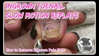 👣Pedicure Tutorial: How to Remove Ingrown Toenail + Satisfying Slow Motion 👣⭐
