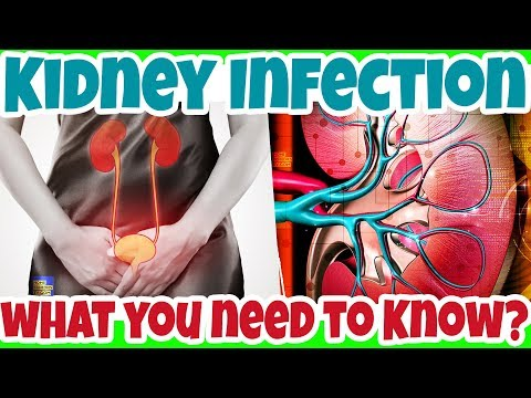 What You NEED to KNOW about KIDNEY INFECTION, A Serious UTI Condition - Pyelonephritis? - 동영상