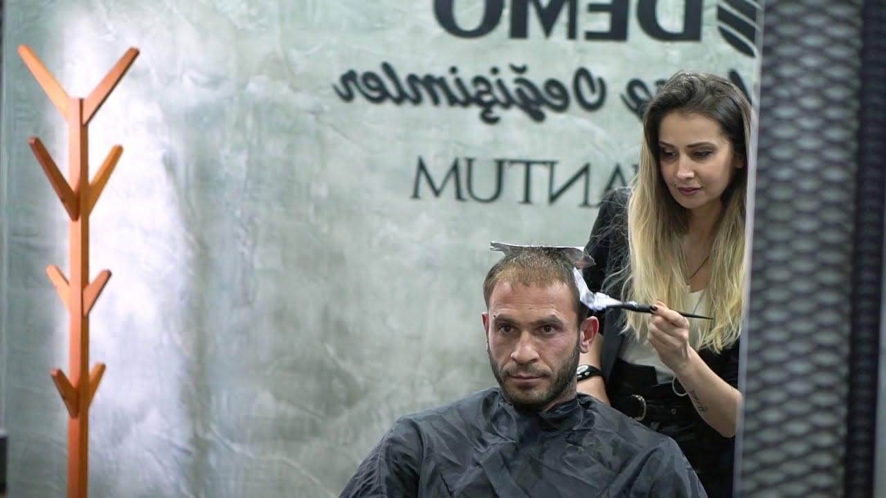 Protez Saç Uygulaması | Saç Protezi