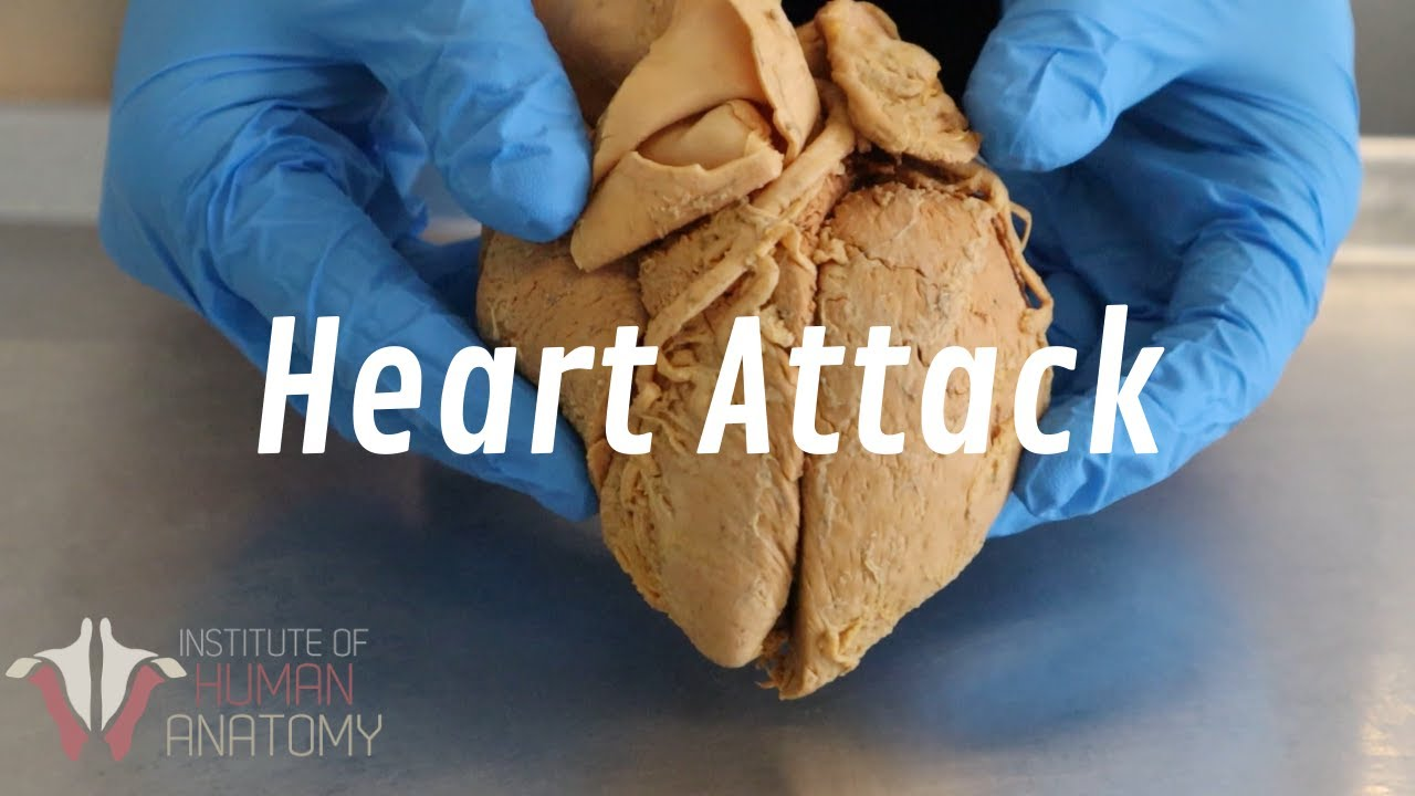 Download What Happens During a Heart Attack | Anatomy of a Heart Attack