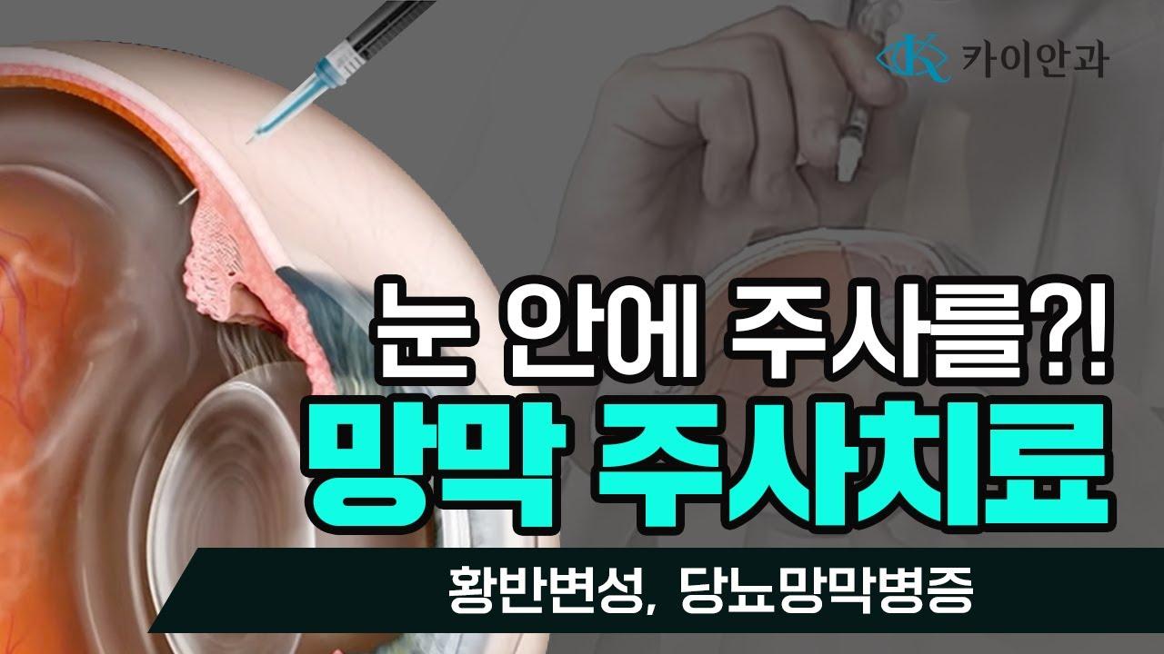 망막 주사치료