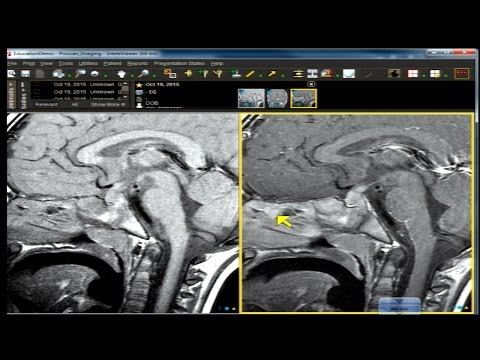 Neuro Imaging Board and Recredentialing Review 14 thumbnail