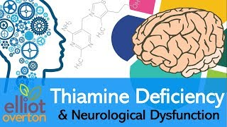 Vitamin B1 (Thiamine) Deficiency, Neurological Dysfunction & Disease